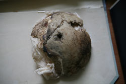 In Chejade's documentary, researchers examined this skull, which was said to be Adolf Hitler's.
